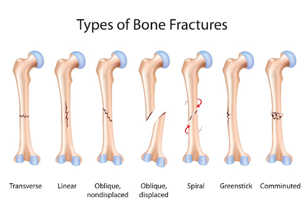 Types of Leg Fractures